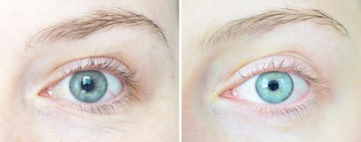 anti rides yeux efficace