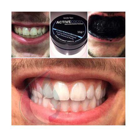 blanchiment dent charbon