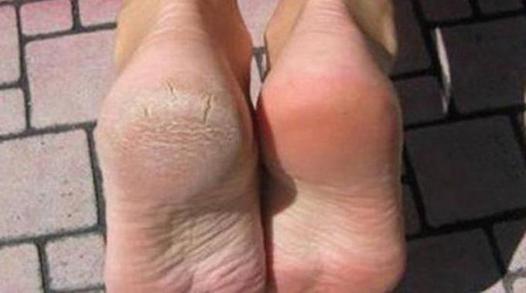 corne des pieds